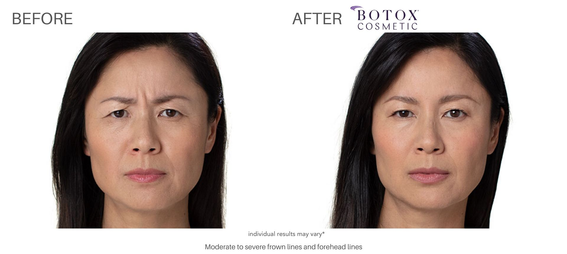 botox cosmetic before and after Vernon Hills Ritacca Cosmetic Surgery