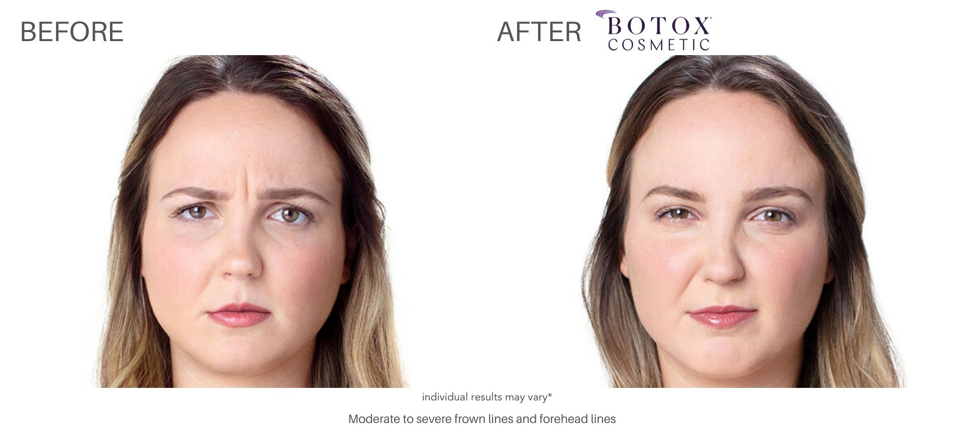 botox cosmetic treatment before and after Vernon Hills Ritacca Cosmetic Surgery