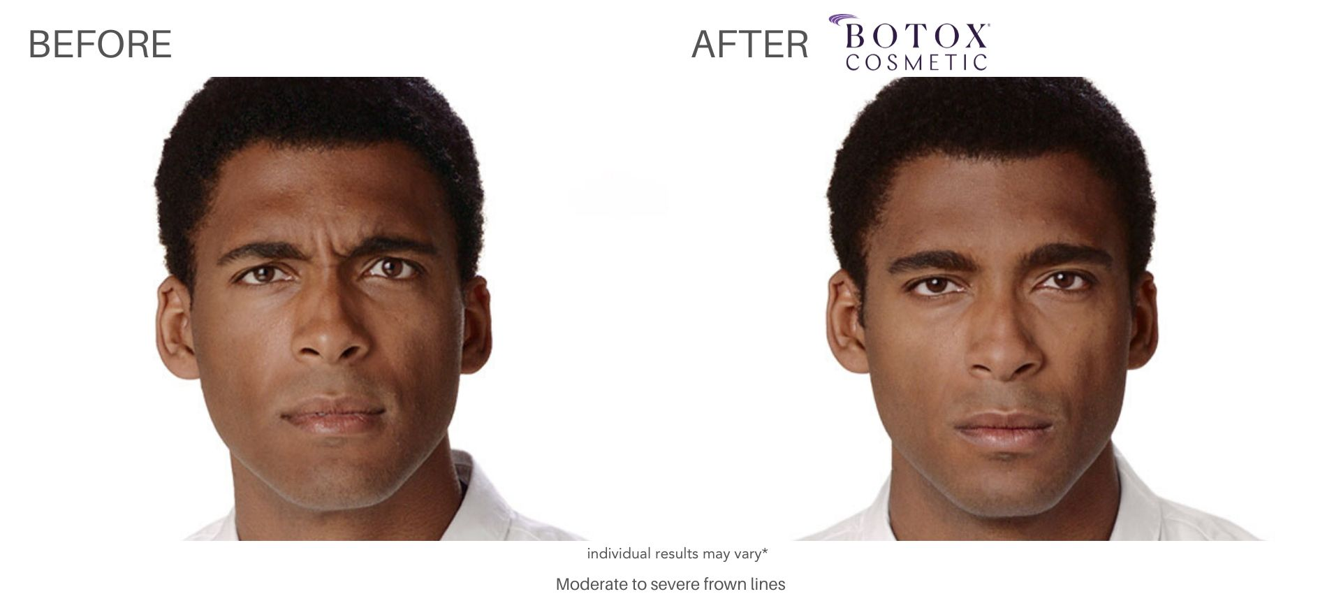 botox cosmetic before and after Ritacca Cosmetic Surgery & Medspa