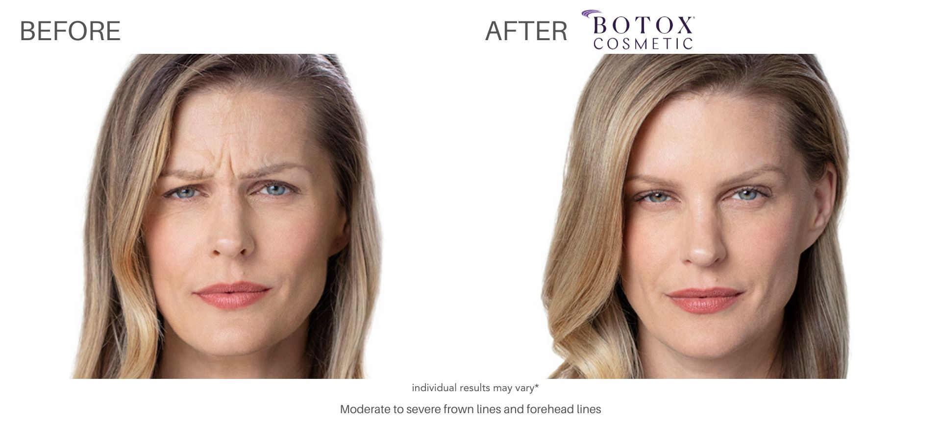 botox cosmetic before and after Vernon Hills, IL